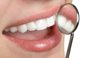 what's the difference between lumineers and veneers